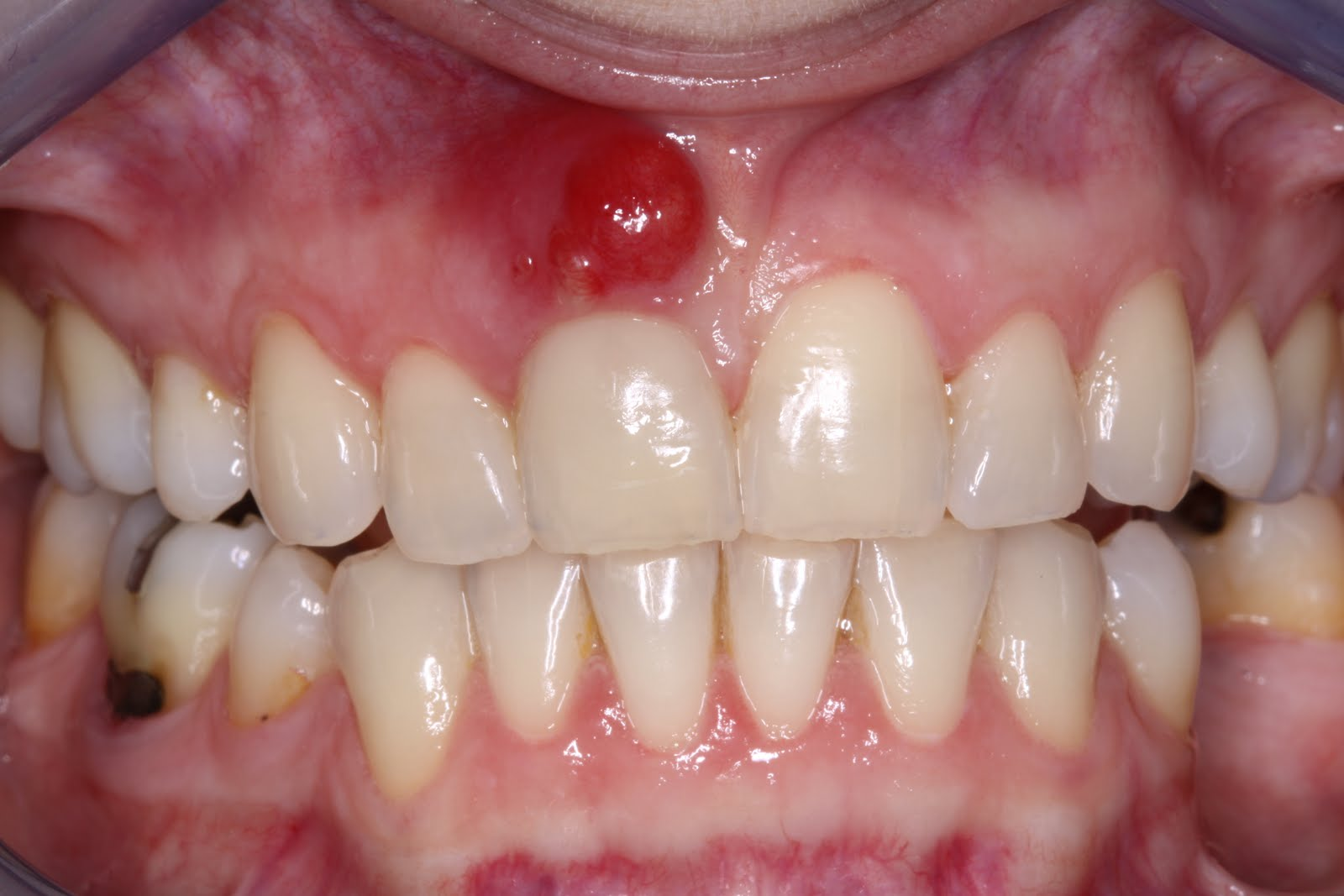 Periodontal Abscess in mouth