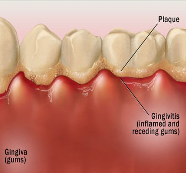 Inflamation of the gums