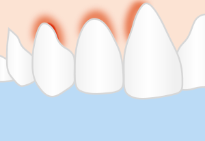 Inflamed Gingiva