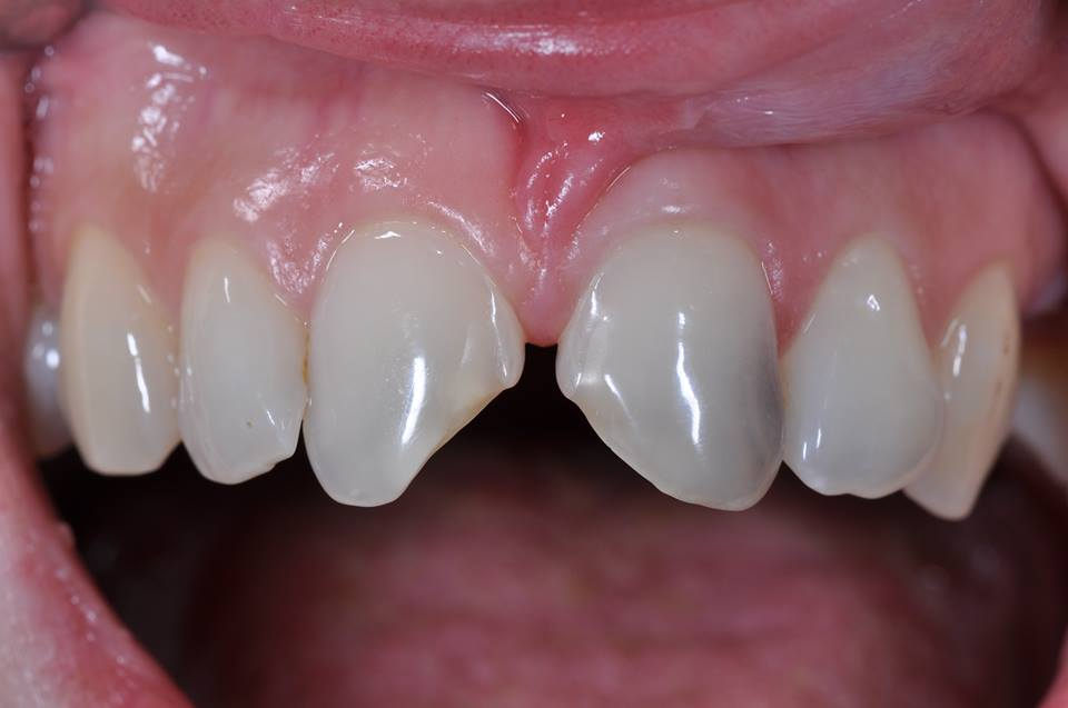 Fractured upper Incisors