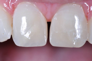 Composite Resin Restoration Upper Incisors